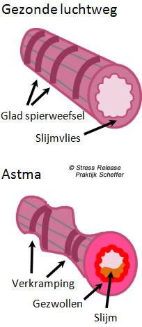 Ademwijzer: minder luchtwegklachten door gezonde ademhaling en minder stress