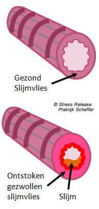 Ademwijzer: verminder luchtwegklachten door gezonde ademhaling en minder stress